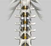 Spinal Fixation and Fusion